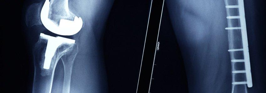 Medical-Implants